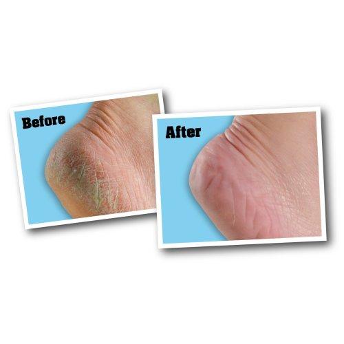 O'Keeffe's For Healthy Feet Foot Cream-3oz